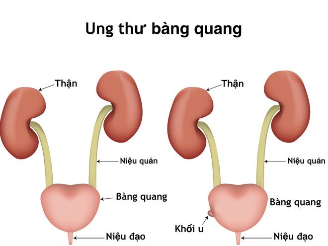 phuong-phap-dieu-tri-ung-thu-bang-quang-quang-tich-cuc