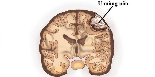 u-mang-nao